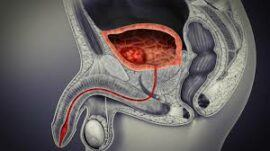 Treatment-Of-Bladder-Cancer1-270×151