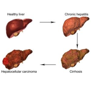 detoxify your liver naturally